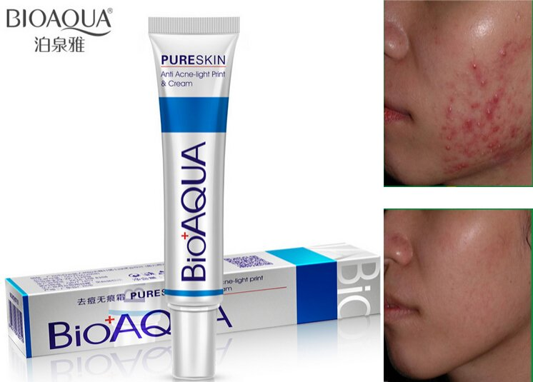 Buy Bioaqua Anti Acne Scar Mark Removal Treatment Cream In Pakistan Getnow Pk
